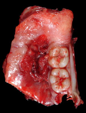 Tobacco Effects On Mouth