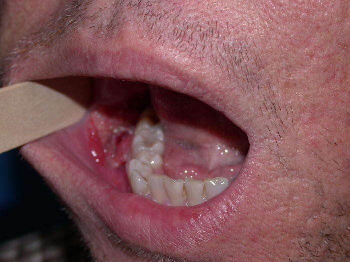 What Does Mouth Cancer Look Like